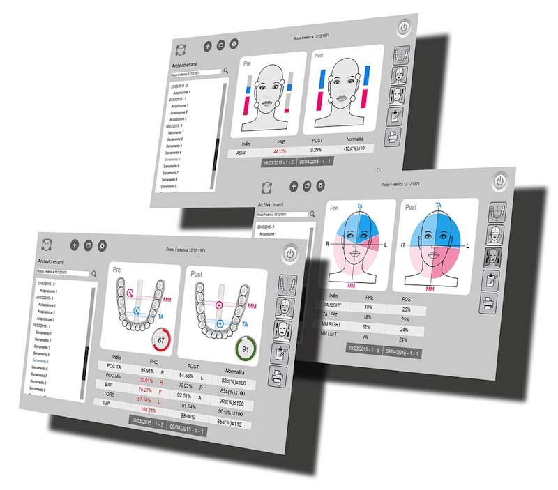 elettromiografia digitale